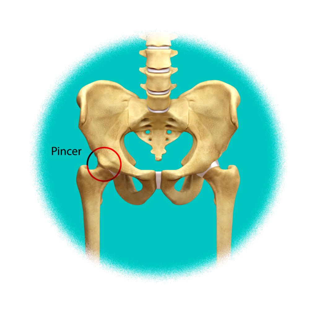 Pinzamiento-tipo-PINCER