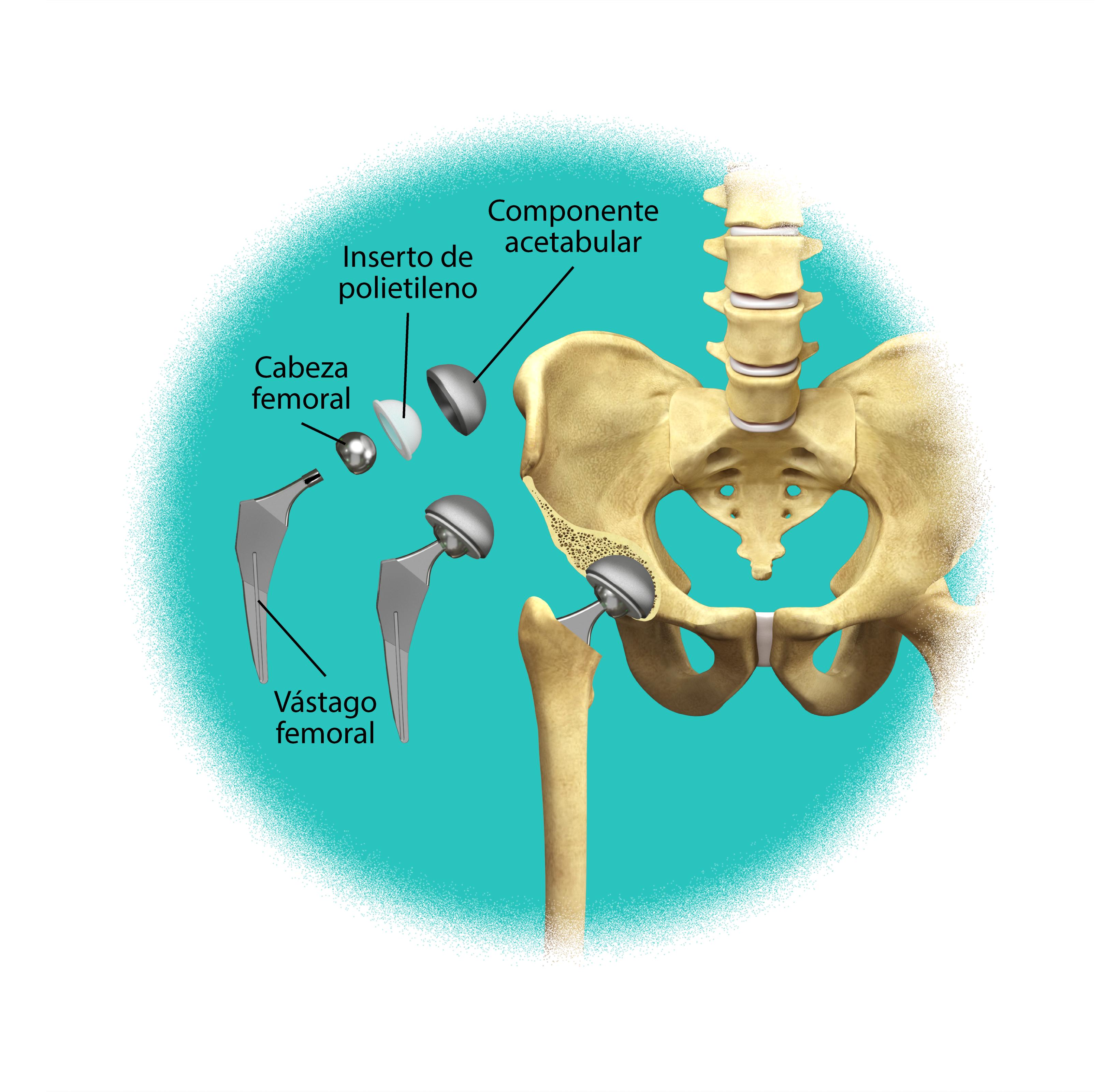 Prótesis de la cadera