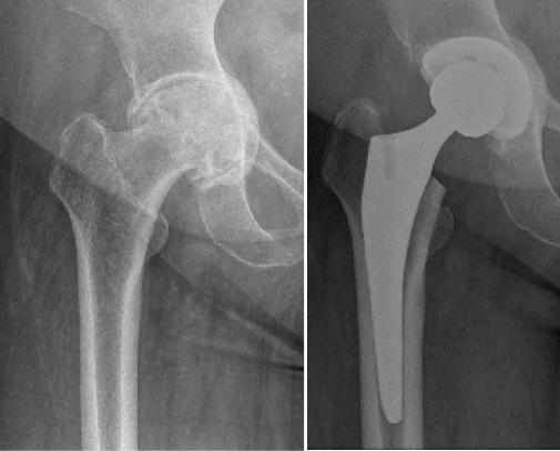 Antes y después del Reemplazo total de la cadera