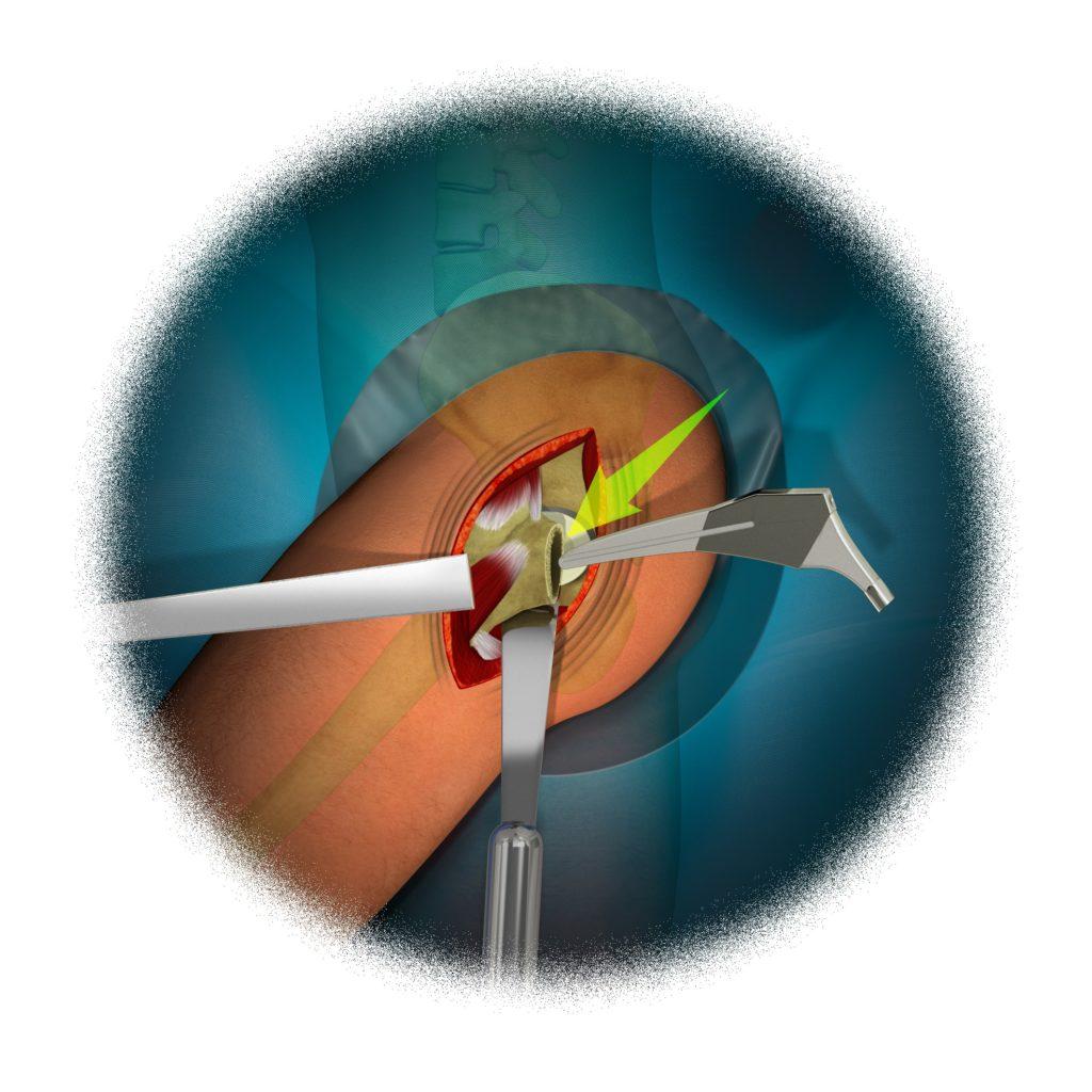 Reemplazo Total de Cadera 12 - colocación componente femoral