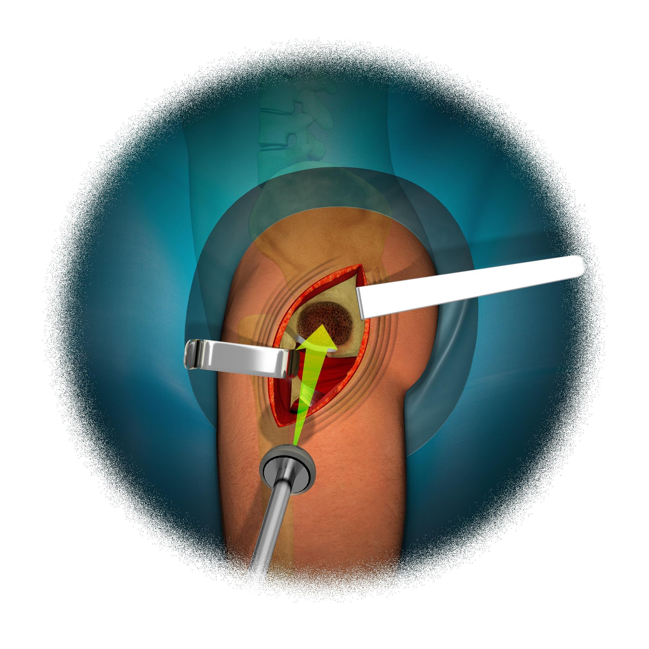 Reemplazo Total de Cadera 7 - Colocación componente acetabular