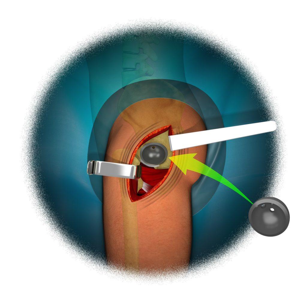 Reemplazo Total de Cadera 9 - colocación inserto acetabular